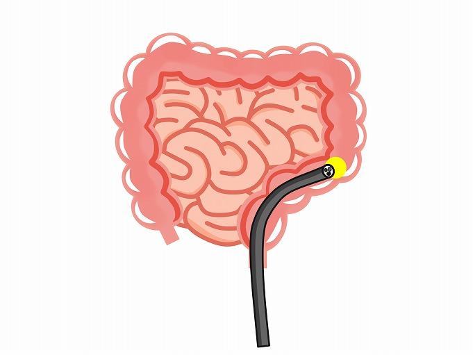 胃カメラ・大腸内視鏡検査の同日検査が可能