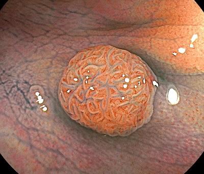 大腸ポリープを切除する意味とは?