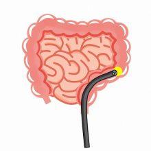胃カメラ・大腸カメラの同日検査が可能